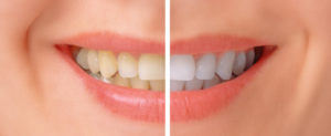 If you're in search of teeth whitening in Fremont from a qualified, experienced dentist, Dr. Joe Provines at Peninsula Center for Implantology is the dentist you need.