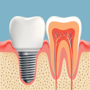 Get a complete smile with dental implants in Sunnyvale.